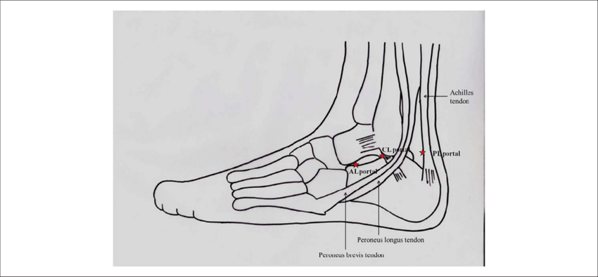 clip stock The illustration shows anterolateral. Ankle drawing profile
