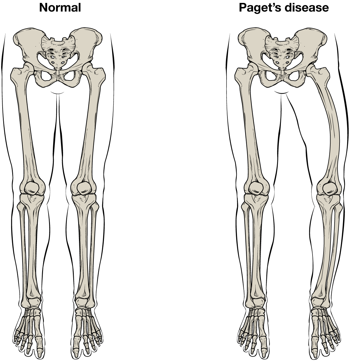 graphic black and white library  structure anatomy and. Bones vector femur bone