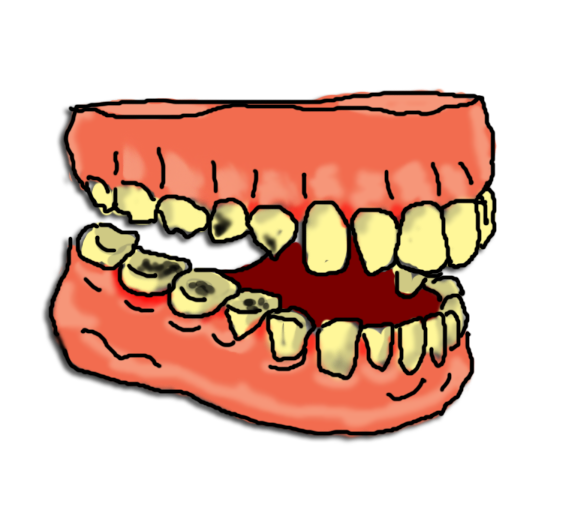 picture transparent library Cartoon Images Of Rotten Teeth