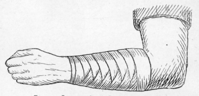 clipart transparent library Bandaging arms . Bandage drawing arm