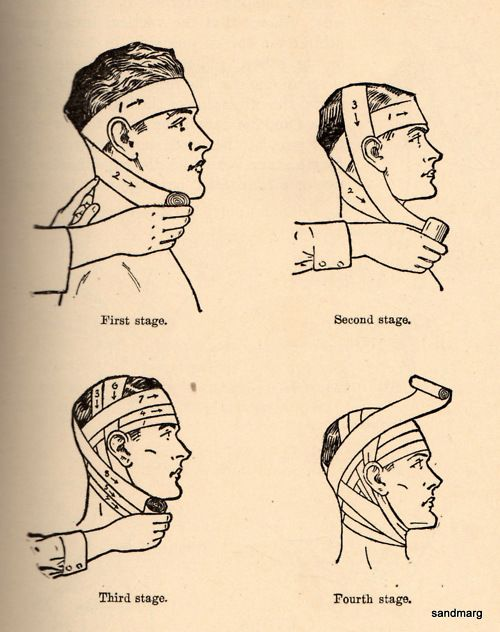 clip art freeuse library Bandage drawing bandaged head.  bandaging the in