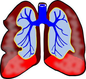 png freeuse download Mesothelioma clip art at. Biology clipart respiratory disease
