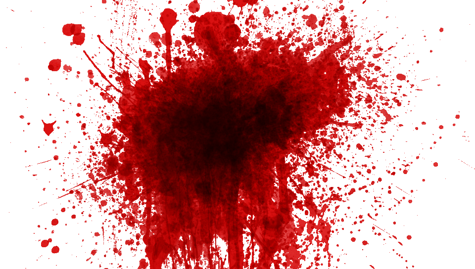 svg royalty free download Blood clipart kid hurt. Zombie splatter board pinterest.