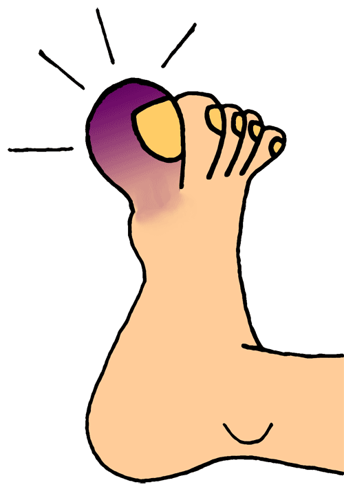 clip black and white stock Big red toe the. Thumbs clipart swollen