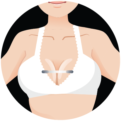 banner free download Bridge reduce sagging bouncing. Bra clipart right arm