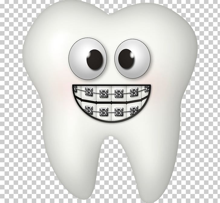 vector transparent library Dental dentistry tooth png. Braces clipart.