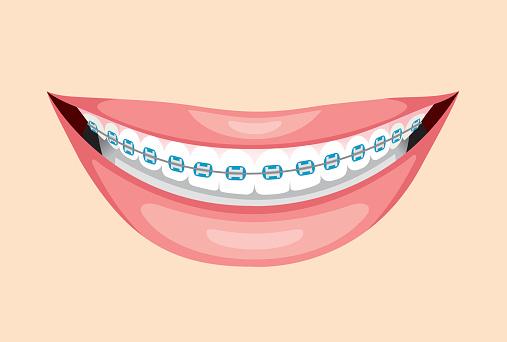 clipart library download Teeth friend clip art. Braces clipart.