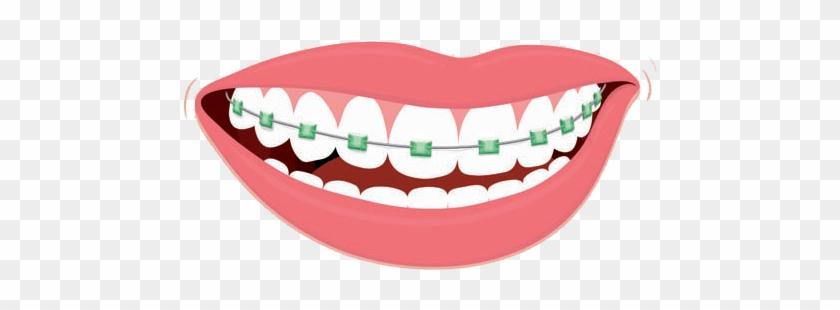 clip art stock Braces clipart. Color me dental free