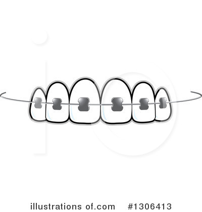 png free stock Illustration by lal perera. Braces clipart.