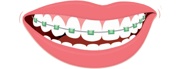 clipart freeuse Can i get if. Braces clipart.