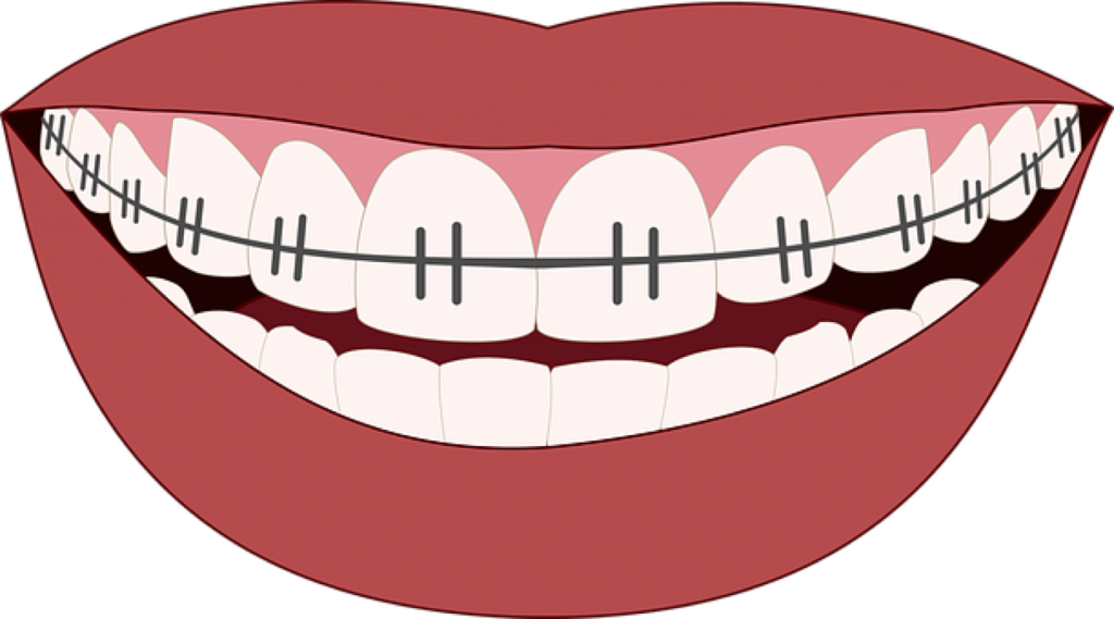 png library Braces clipart human tooth. Should you use dental.