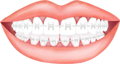clip art royalty free stock Hornsby orthodontics colour planner. Braces clipart human tooth.