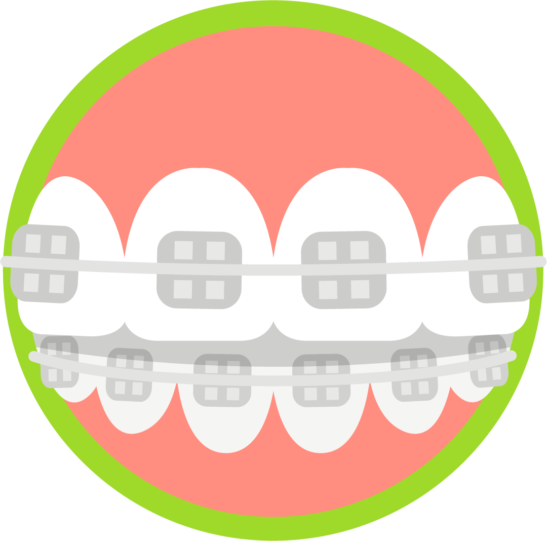 banner freeuse download Blue wave orthodontics invisalign. Braces clipart orthodontic assistant
