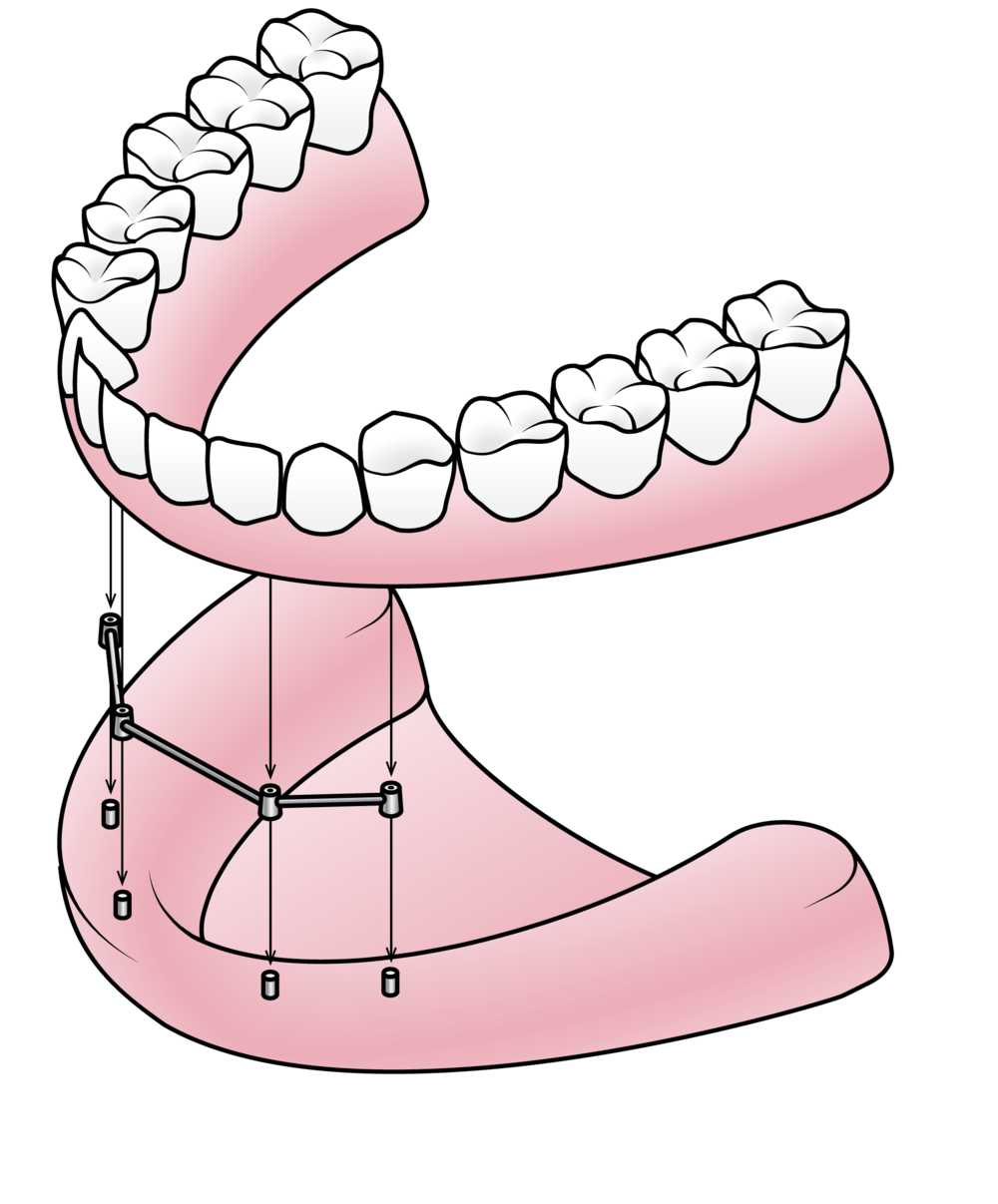 clipart black and white download Drawing tooth diagram. Full partial dentures valley