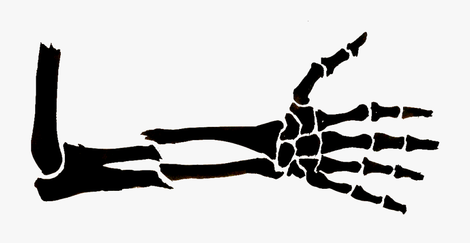 clipart black and white library Broken arm clipart. Pictures of free download