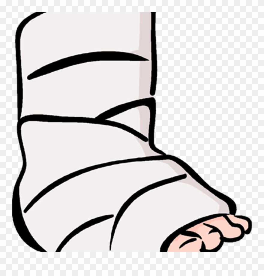 picture library Broken clipart. Clip art ankle for.