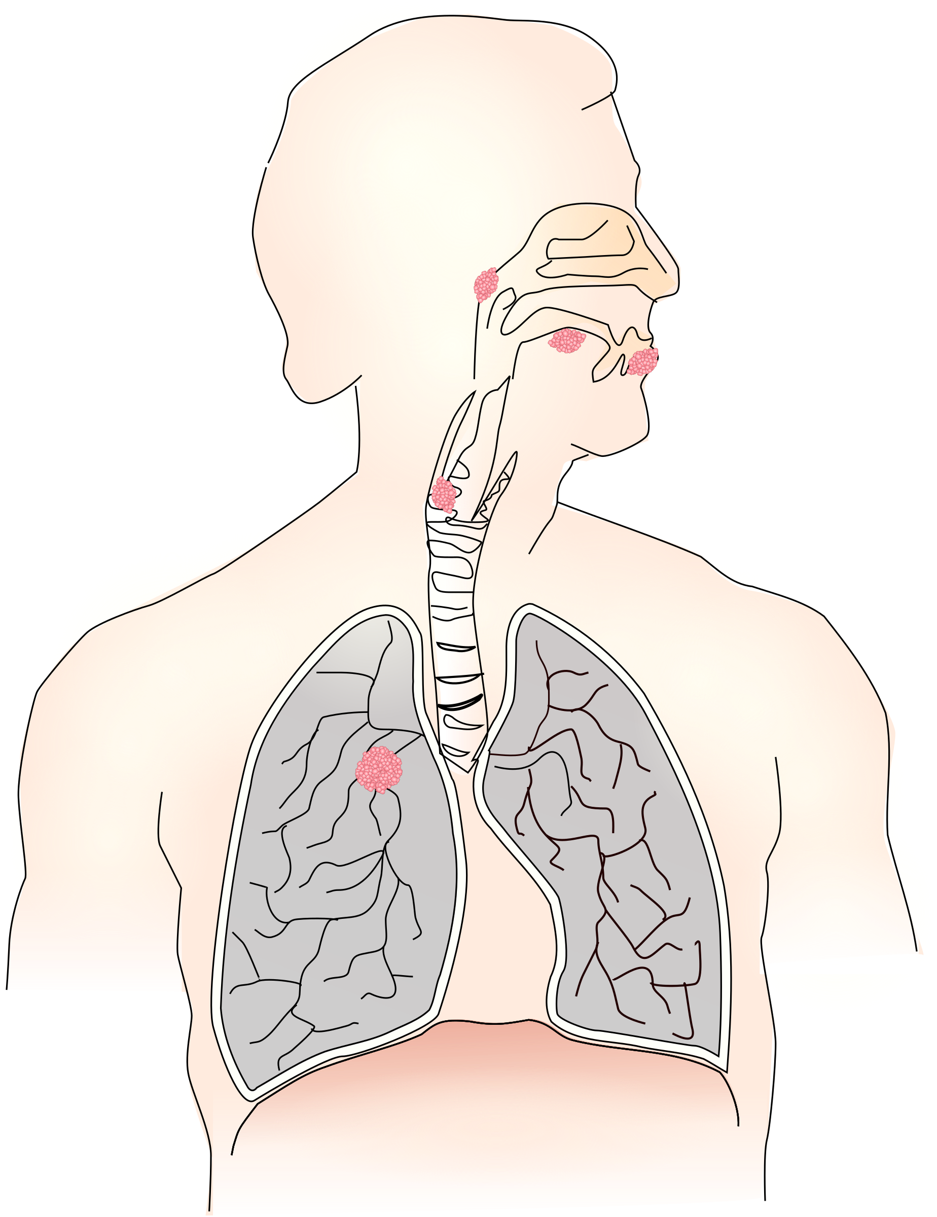 image free library Caused by smoking i. Cancer clipart cancer symptom