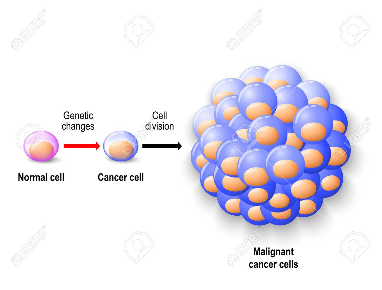 svg black and white stock Cancer clipart malignant. X free clip art.