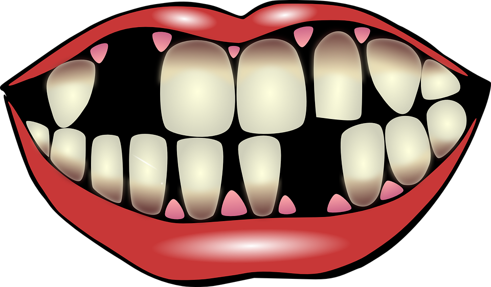 clip art royalty free Consequences of maintaining poor. Vector dental oral hygiene