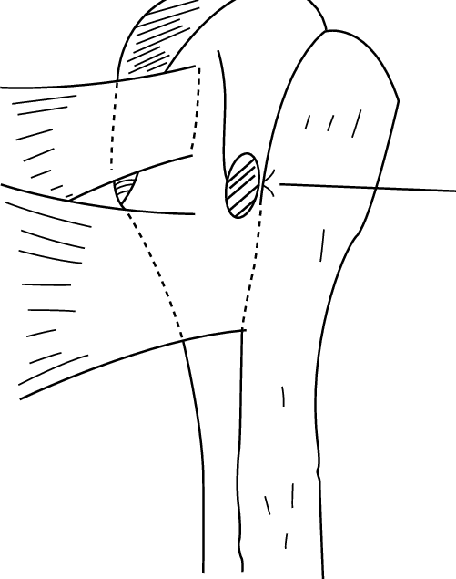 vector freeuse stock Bicep drawing diagram. Line showing the preferred