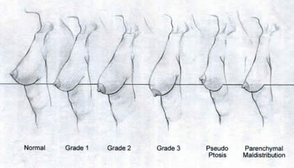 image freeuse Drawing breast pencil. The standardized no test.