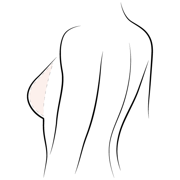 vector royalty free download Drawing breast. Lift kalo related cosmetic.