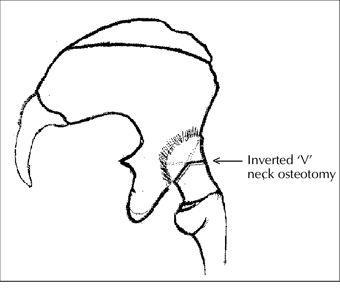 jpg library library Drawing neck line. Diagram showing inverted v