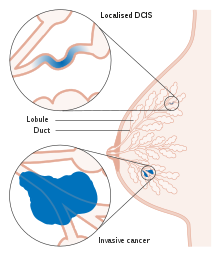 png library Drawing nipples inverted. Ductal carcinoma in situ