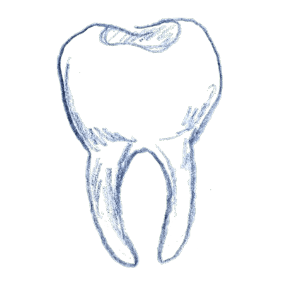 clipart free Drawing tooth sketch. Bondings colored fillings grove