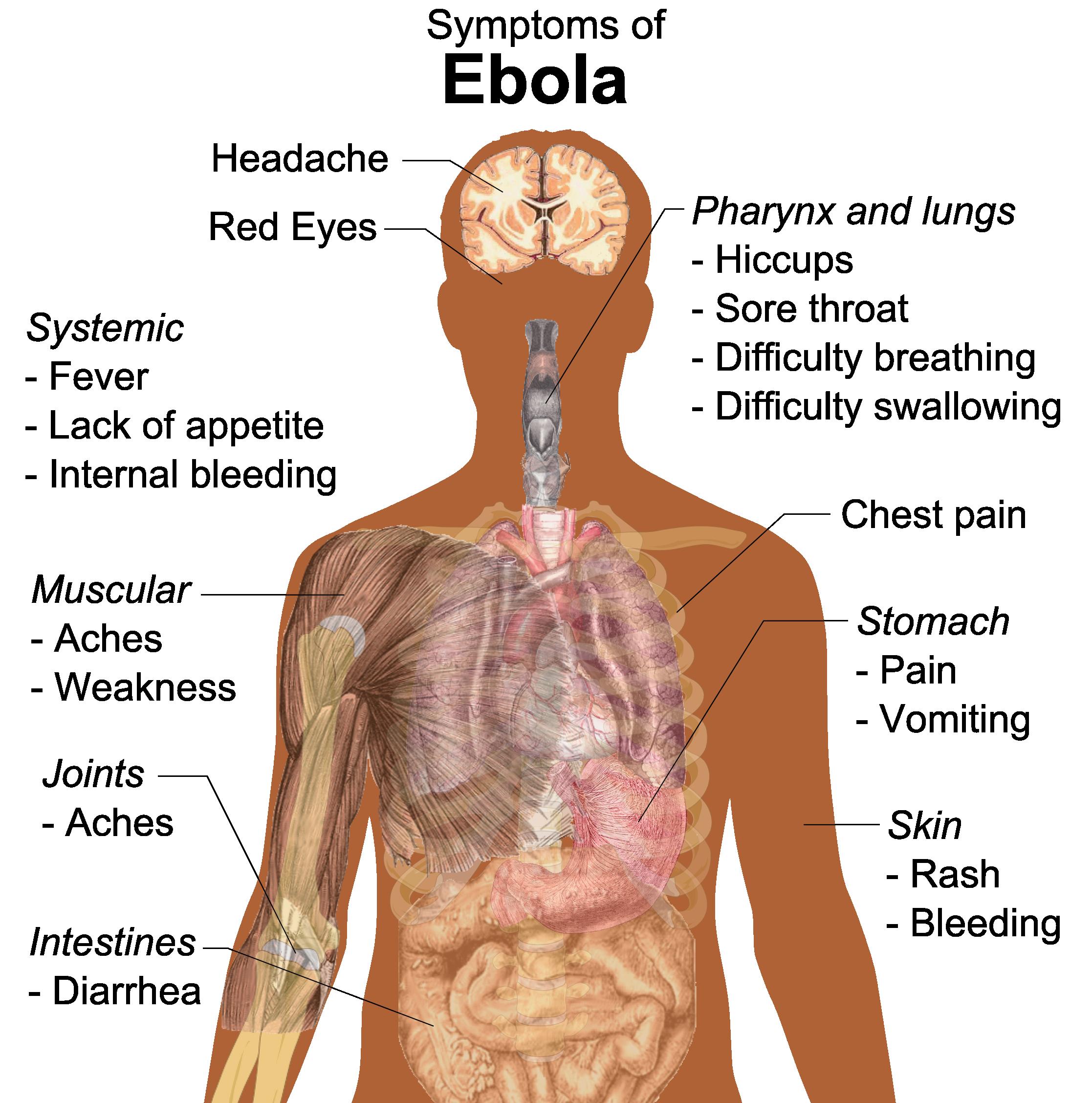 graphic freeuse download ebola vector symptoms #96097763