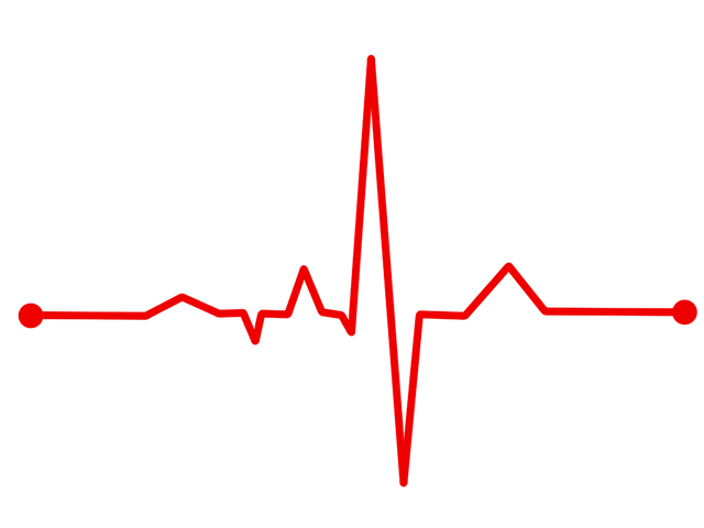 svg free stock PNG Ekg Transparent Ekg