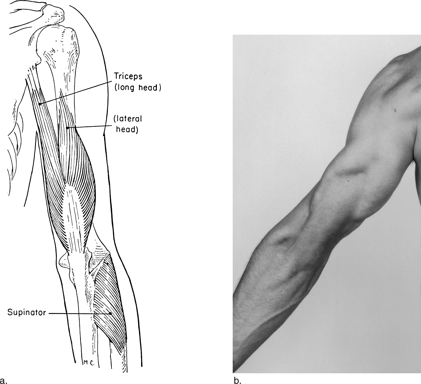 graphic royalty free download The Upper Extremity
