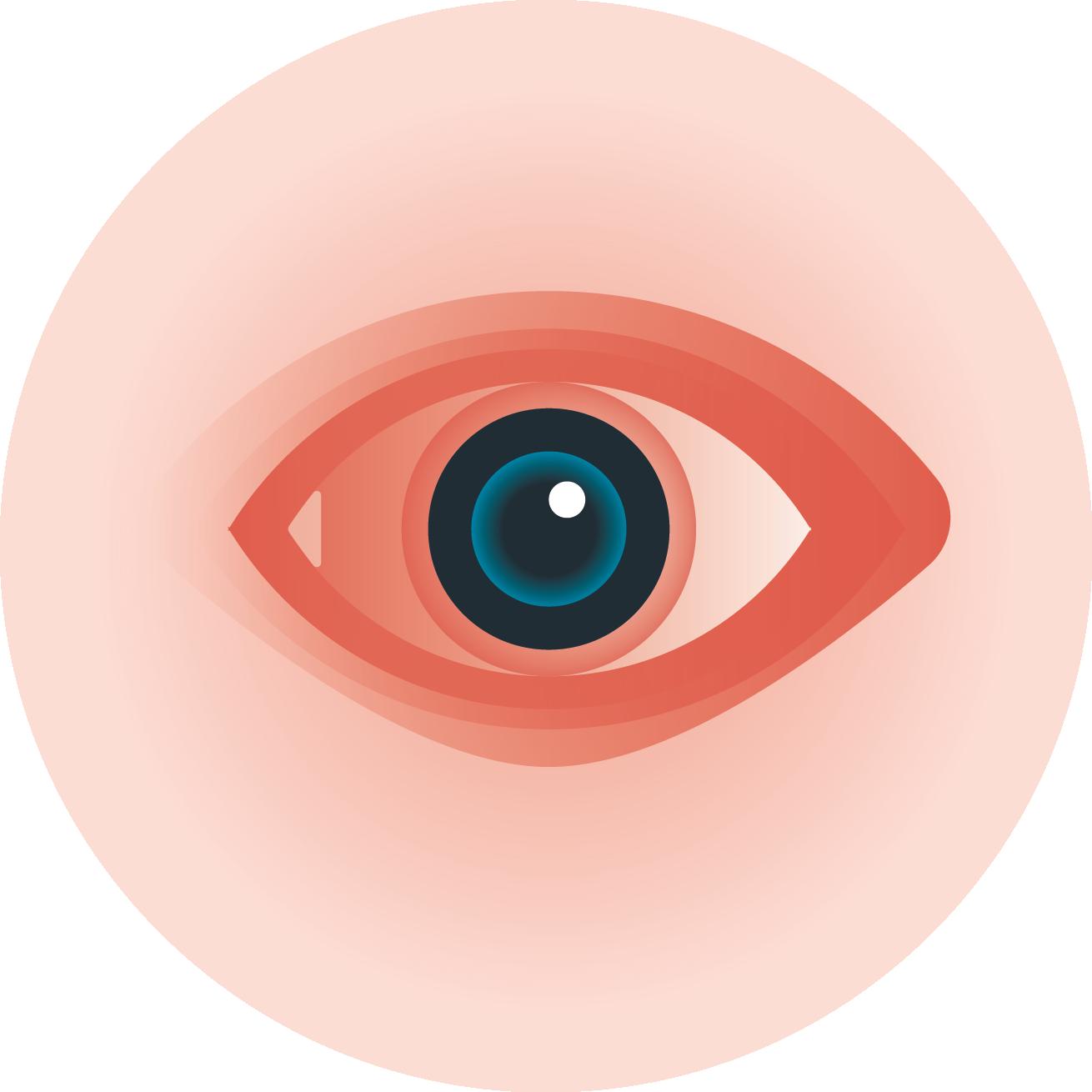 clip art black and white stock eyeball clipart eye irritation #78612149