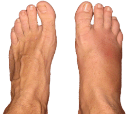 banner library stock How To Get Rid of Swollen Feet