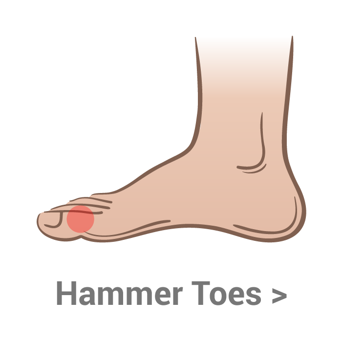 vector royalty free library Hammer Toes