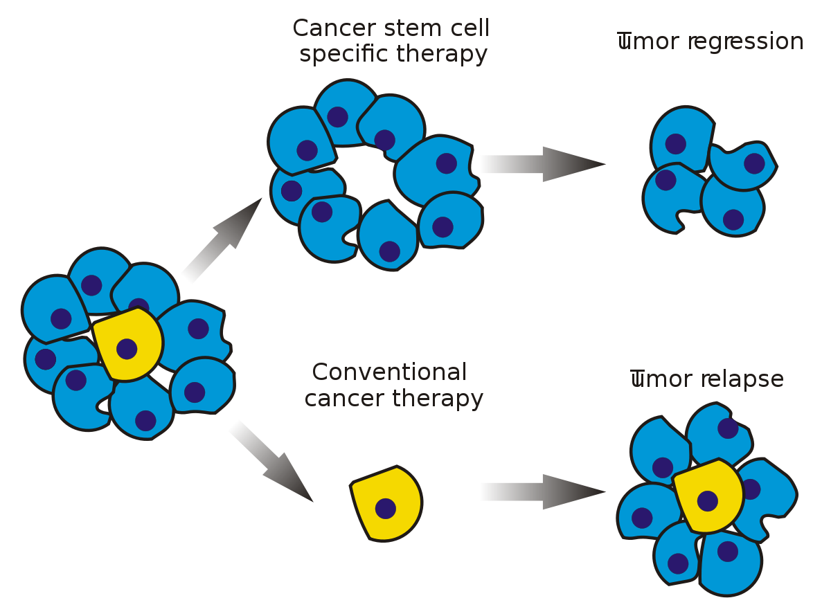 download Cancer stem cell wikipedia. Cells clipart malignant.