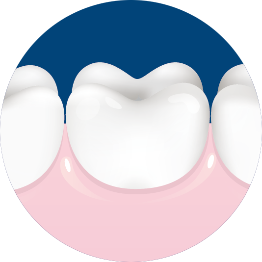 picture library download Protection biorepair gums after. Gum clipart gingivitis