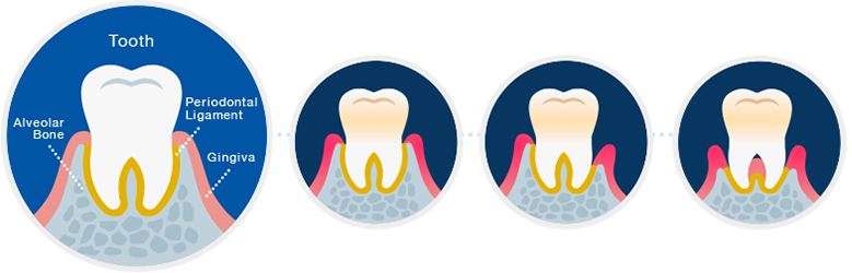 png library stock Gum clipart gingivitis. Holistic care to help