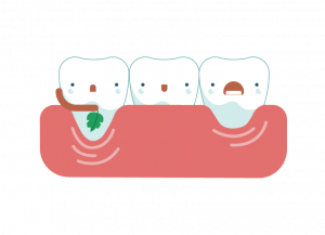 banner royalty free download Recession tooth sensitivity solutions. Gum clipart gingivitis