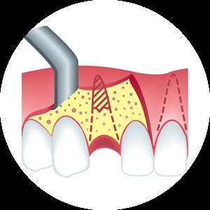 banner freeuse stock Disease . Gum clipart gingivitis