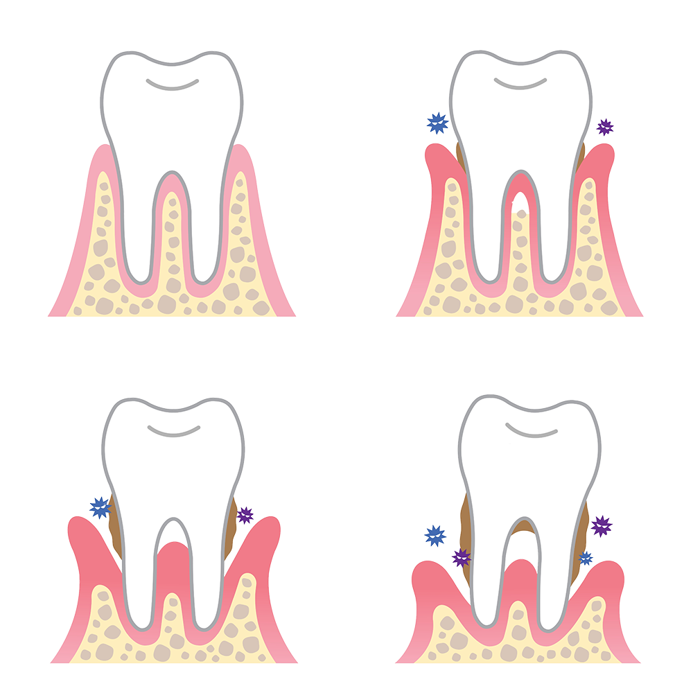graphic royalty free stock Gum clipart gingivitis. How periodontal disease causes