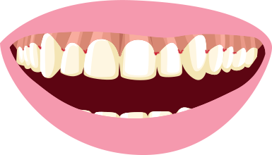 clip art download Clip on veneers snap. Gum clipart theeth