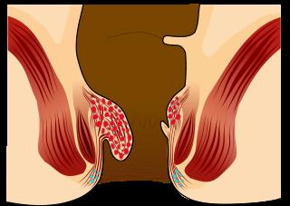 banner library Bleeding treatment gastrointestinal disorders. Lifting clipart hemorrhoid