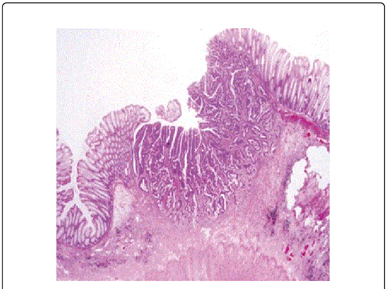 jpg library stock Rectal histology