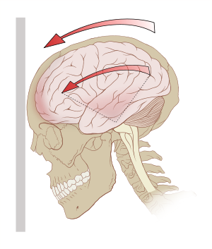 picture transparent stock Concussion