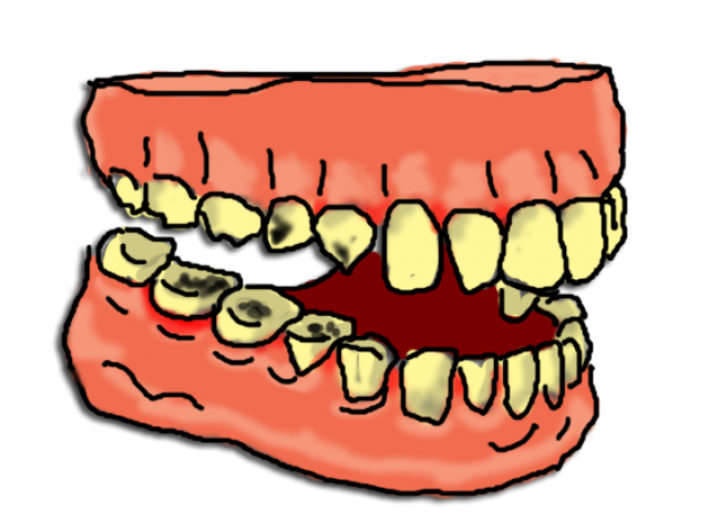 picture download Mouth clipart gross. Decay free on dumielauxepices.