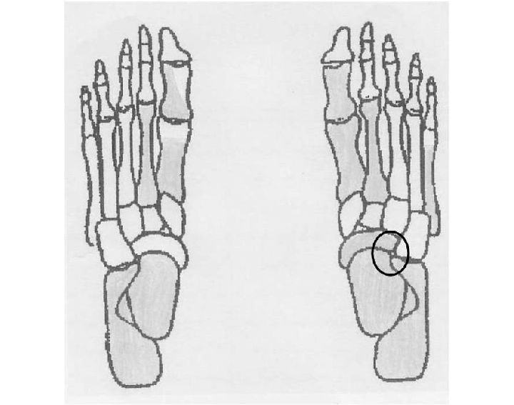 clipart royalty free library Collection of free Drawing skeleton foot