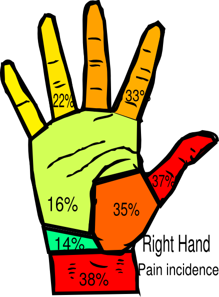 clip library stock Right hand pain incidence. Surgeon clipart
