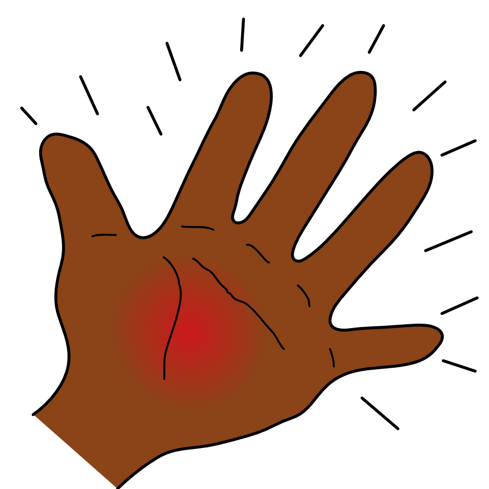 free download Thumbs clipart swollen. Thumb transparent free for