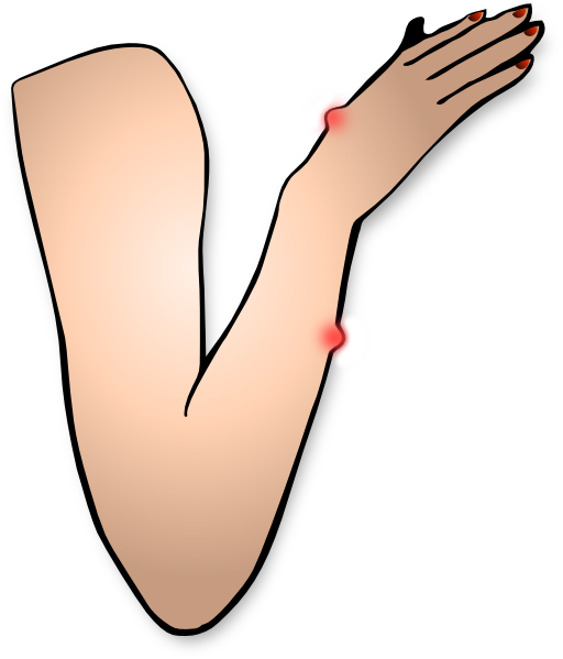 png Recommendation needed treatment for. Thumbs clipart swollen